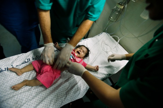A Palestinian girl, who medics said was wounded in Israeli shelling, is treated at a hospital in Gaza City July 20, 2014.  (REUTERS/Suhaib Salem)